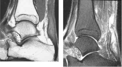 Achilles Tendon Mri Section Images