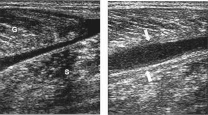 Calf Muscle Tear Ultrasound
