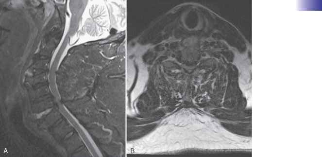 Discoligamentous Injury Mri