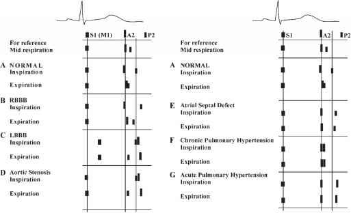 Loud P2 Pulmonary Hypertension Mp3 Cardiac Physical Examination