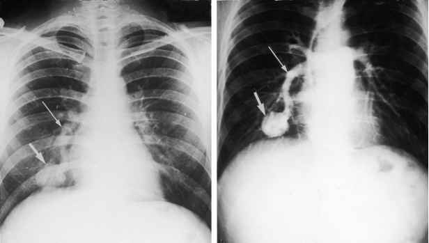 Chest Ray Fistula