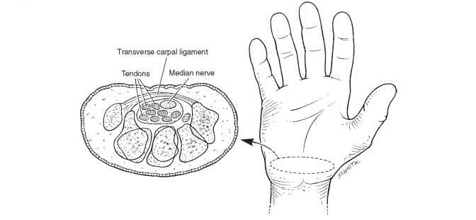 Nerve Supply Extremity Splinting Mitch Medical Healthcare