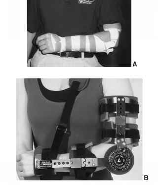 Dislocated Elbow Splint Uses