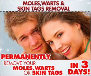Moles, Warts and Skin Tags Removal Ebook By Charles Davidson