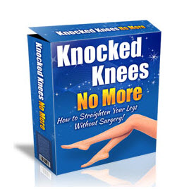 Knock Knees Correction Without Surgery