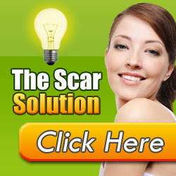The Scar Solution By Sean Lowry