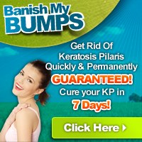 How To Get Rid Of Herpes Naturally Forever