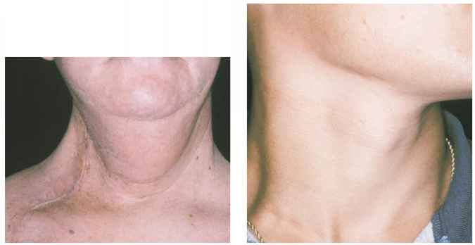 Lymphedema After Neck Dissection