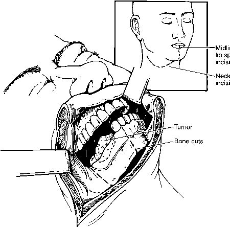 Floor Mouth Resection