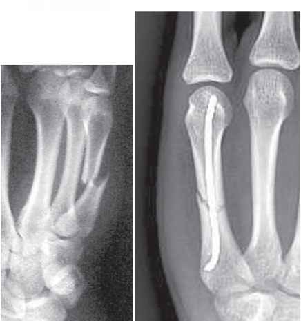 Midshaft Metacarpal