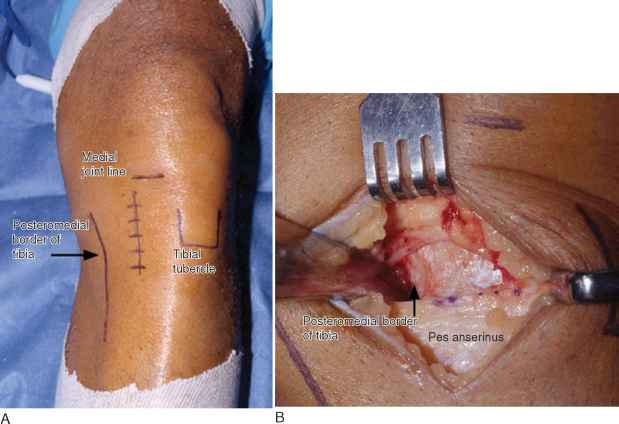 Tibial Tubercle Osteotomy Scar