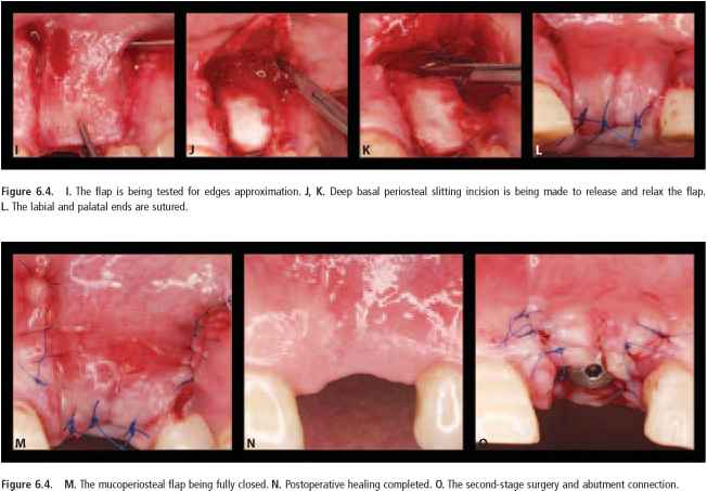 Epithelial Tissue Tooth Extraction