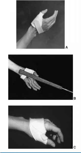 Radial Collateral Ligament Thumb Splint