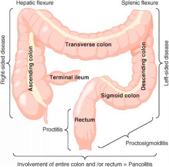 Pathophysiology Ulcerative Colitis