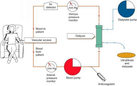 Hemodialysis And Urea