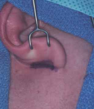 Parotid Incision Biopsy