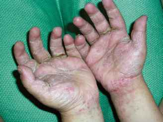 Scabies Children