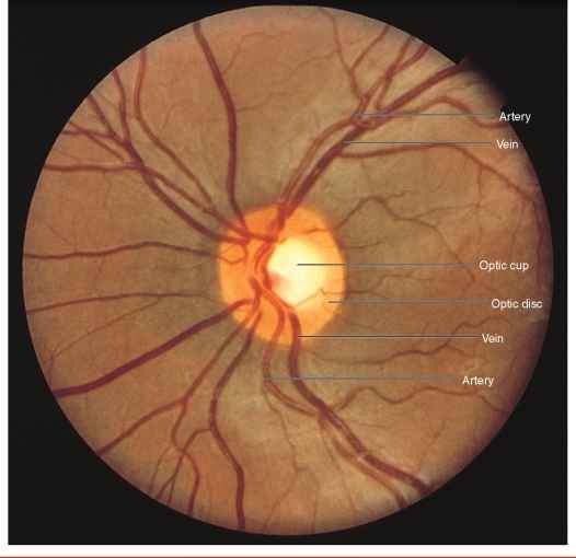 Normal Optic Disc