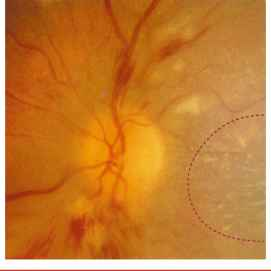 Retinal Heme Hypertension