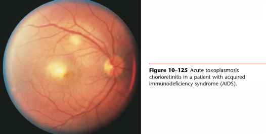 Retinal Haemorrhage With White Lesion