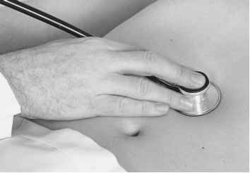 Auscultation Abdomen Fig