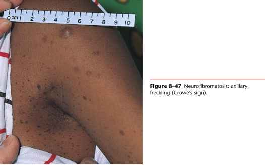 Plaque Psoriasis Skin Cross Section