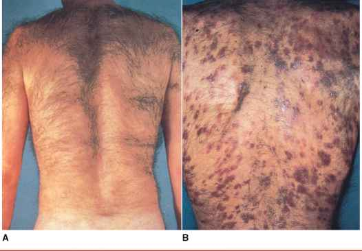 Kaposi Sarcoma White Man Back