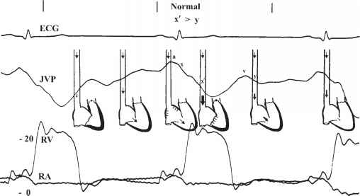 Jugular Venous Pressure Ekg