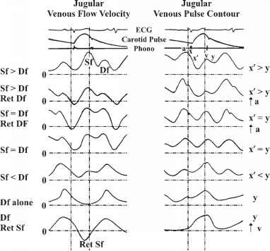 Jugular Vein Pulsation