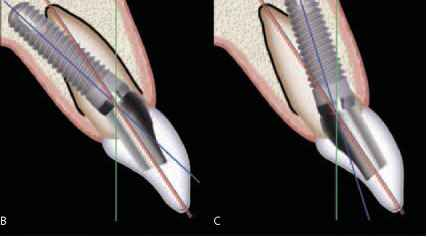 Long Axis The Implant Mean