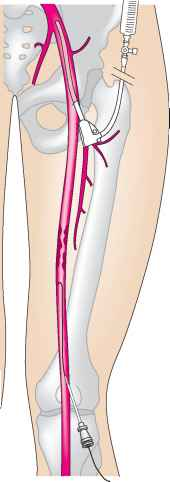 Popliteal Artery Puncture Technique