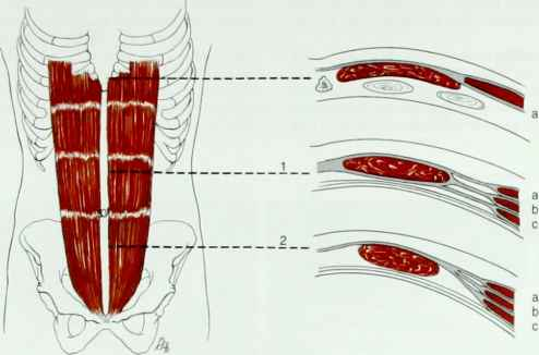 Rectus Abdominis - Muscles - Mitch Medical Healthcare