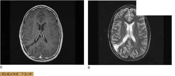 What Does Brain Mri With Contrast Show