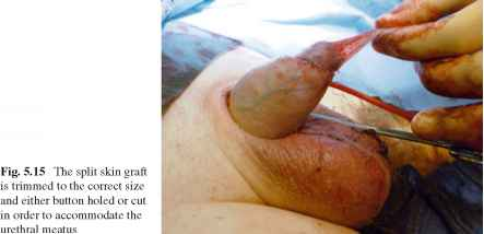 Penile Cancer Images