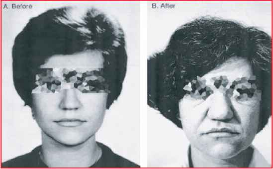 Acromegaly Pictures Before After