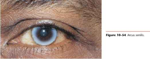 Thin Rim Of Golden To Brown Coloured Kayser Fleischer Rings In Bilateral Cornea
