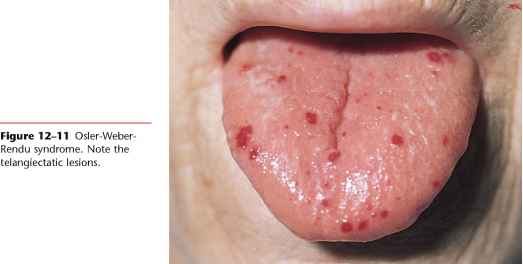 Buccal Mucosa White Lesions
