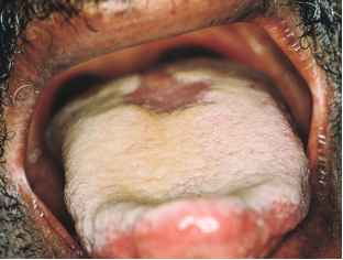 Fissured Leukoplakia