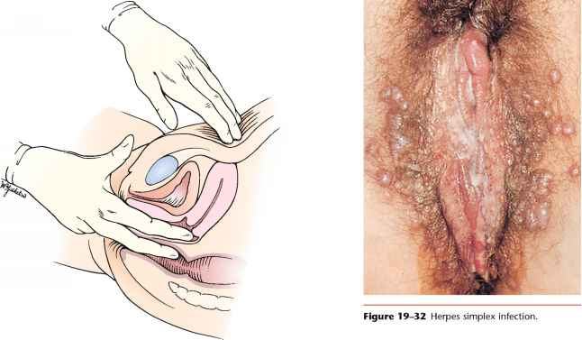 Light brown vaginal discharge and camping