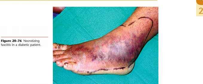 Diabetic Septic Ankle