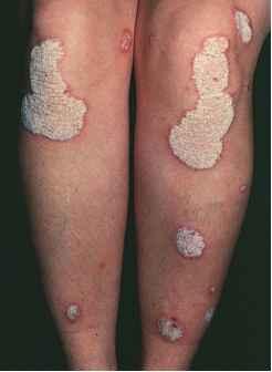 Tinea Cruris Cura - Physical Diagnosis - Mitch Medical
