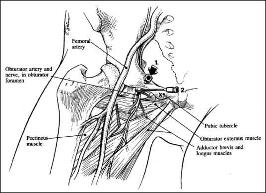 Medial Sural Artery Perforator Flap