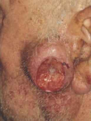 Lymph Node Tumor Forehead