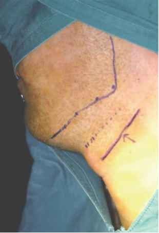 Submandibular Incision With Name