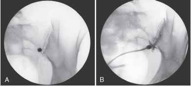 Sacroiliac Joint Injection Contrast