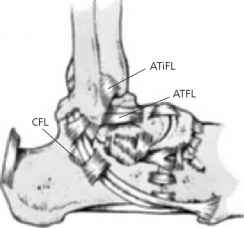 Atfl Lateral Malleolus